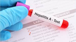 State Department of Health warns about increase in Hepatitis A cases